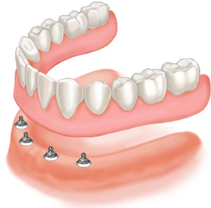 Mini-Implants in Complete Denture Treatment Bone