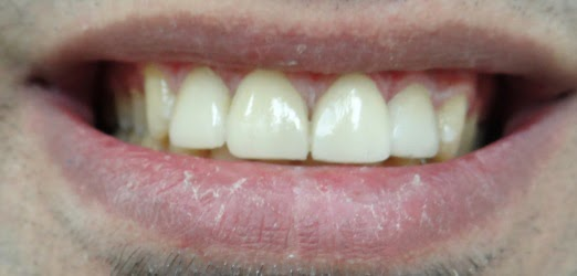 Porcelain Laminate Veneers & All-Ceramic Crowns