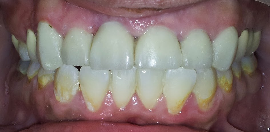 Ceramic Premolar Crown Porcelain Veneers
