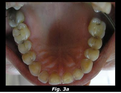 Gastro Esophageal Reflux Disease (GERD) & Tooth Erosion