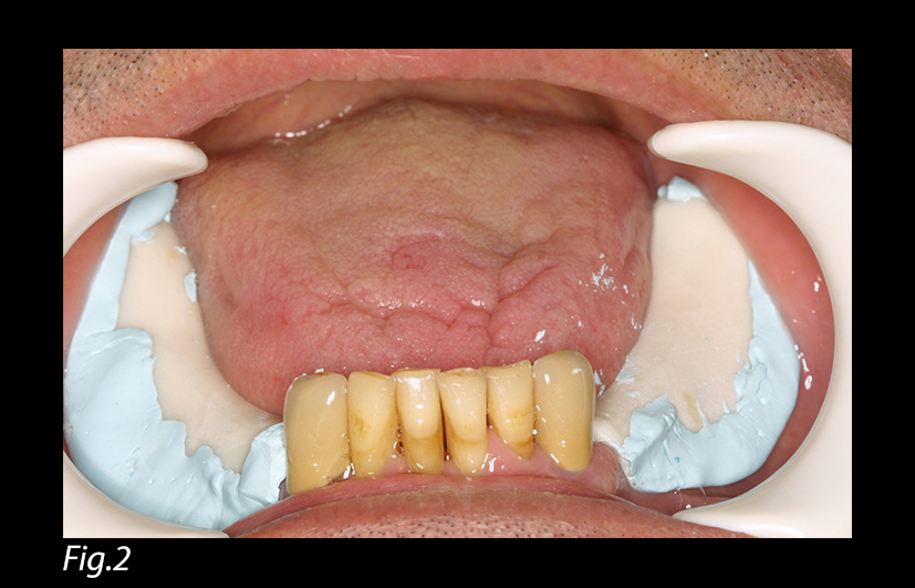 A Simplified Impression Technique for Distal Extension Removable Partial Dentures