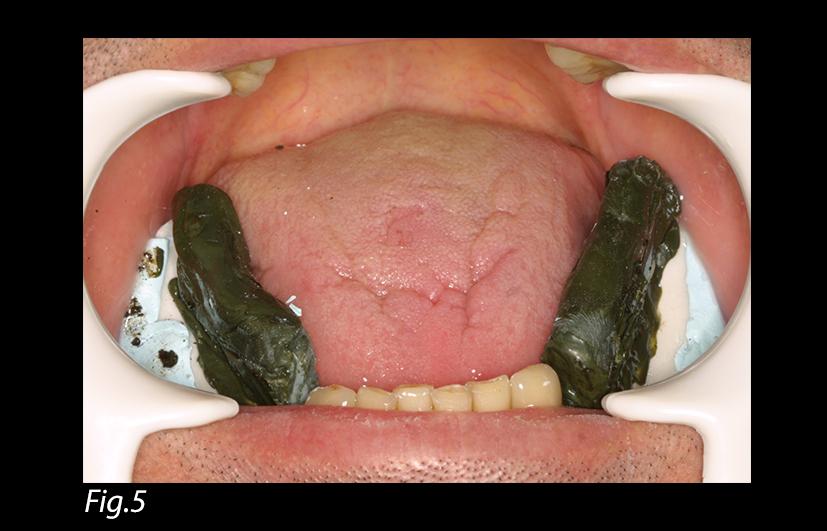 A Simplified Impression Technique for Distal Extension Removable Partial Dentures