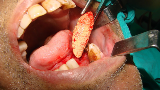 Salivary gland stones (Sialothiasis) most commonly occur in the Submandibular duct. This report describes the case of a patient who had an unusual large submandibular gland sialolith (calculus) that was completely obstructing the submandibular gland duct.