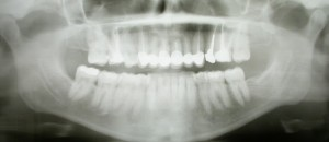 This article presents a review of the clinical applications of cone-beam computed tomography (CBCT) in different dental disciplines.
