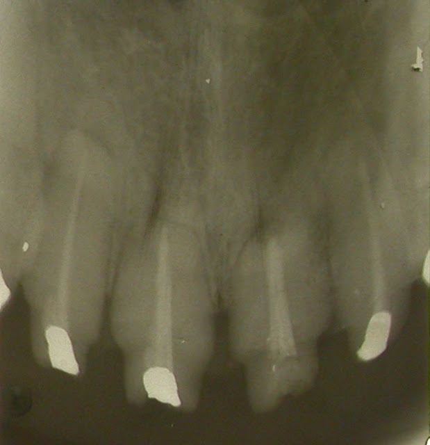 Cone-Beam Computed Tomography Applications in Dental Practice: A Literature Review
