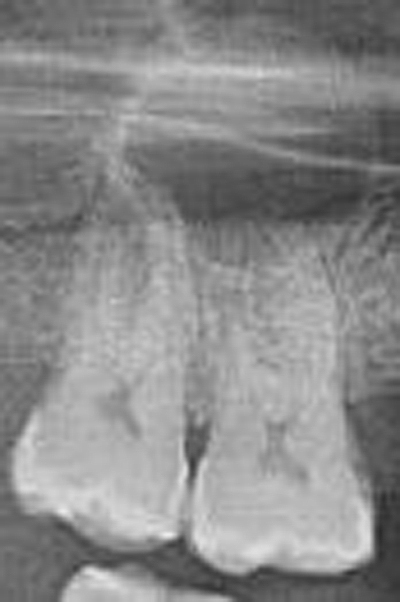 A periapical lesion in a periapical radiograph (courtesy of Dr. Fredrek Barnett).