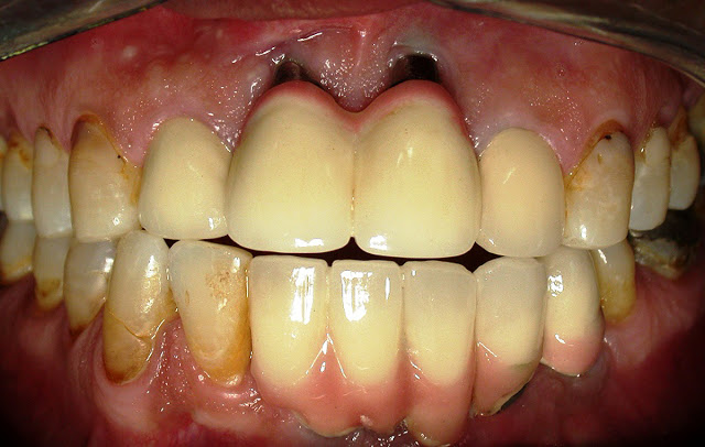 A clinical image of multiple implants placed 5 years ago.