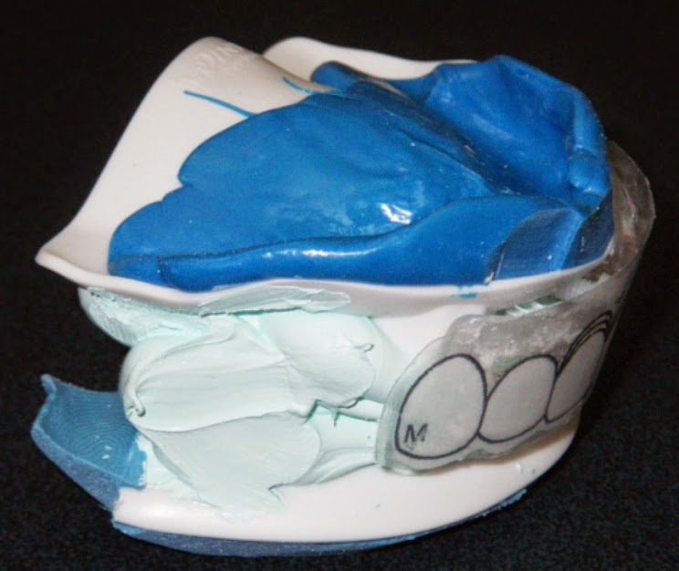 CAD/CAM technology for fabricating complete dentures