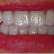 Advancements in CAD/CAM technology have enabled dentists to provide their patient with maximal functional and esthetic results