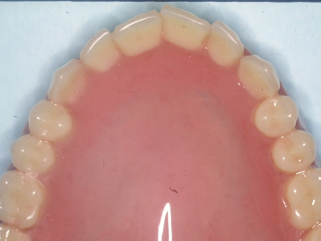 Customizing Esthetic Complete Dentures, Natural look denture