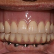 Full Arch Implant Reconstruction - Combination Syndrome