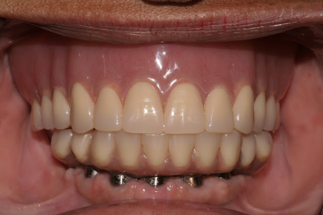 Full Arch Implant Reconstruction - Combination Syndrome Patient
