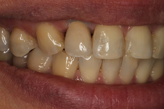 Cement-free Implant Retention