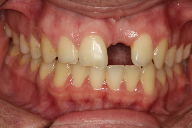 Implant Placement in Esthetic Zone After Bone Block Reconstruction