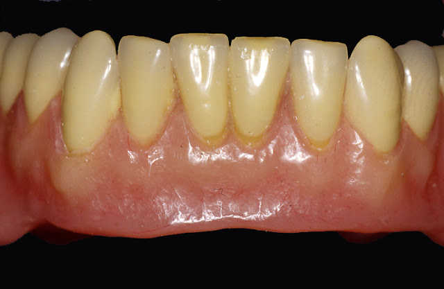 Standardized Protocol For Successful Mandibular Implant Overdentures impression
