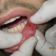 Aphthous Ulcers Treatment with Laser Diode