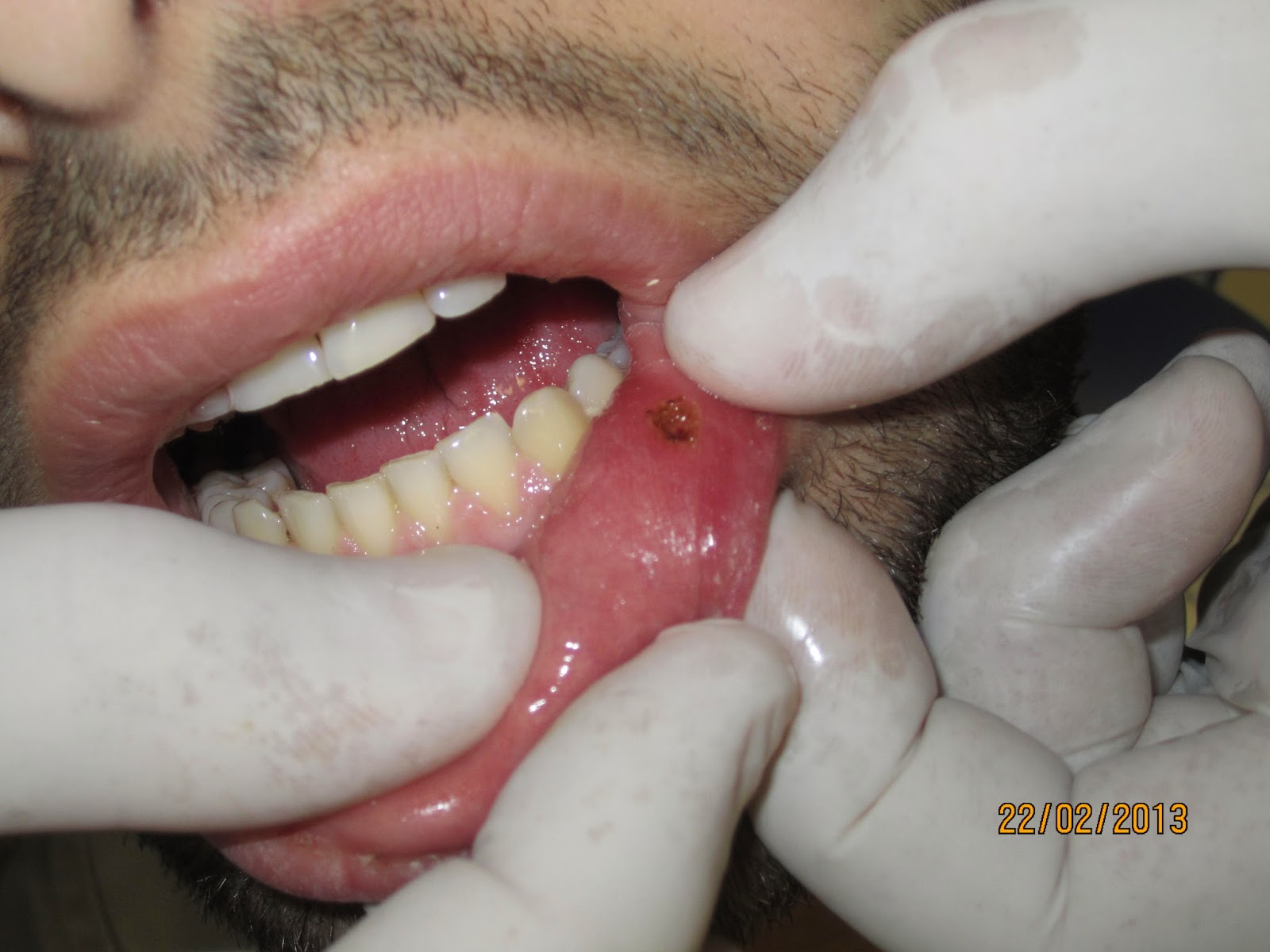 Aphthous Ulcers Treatment with Diode Laser