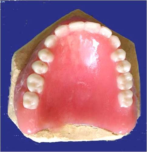 Repairing, Relining, Rebasing in a Complete Denture