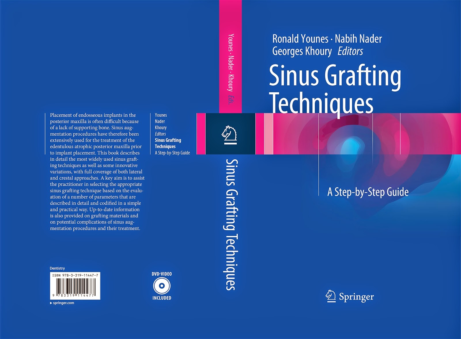 Sinus Grafting Techniques . A Step-by-Step Guide