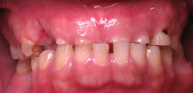 Tooth Surface Loss is an increasing problem, it may results from dental erosion, attrition, dental abrasion and abfraction