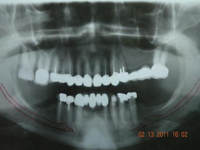 Unilateral subperiosteal implant - Insufficient bone - Bone impression