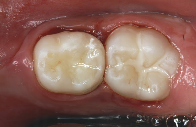 Use Of Glass Ionomer Cements In Paediatric Dentistry Clinical Cases