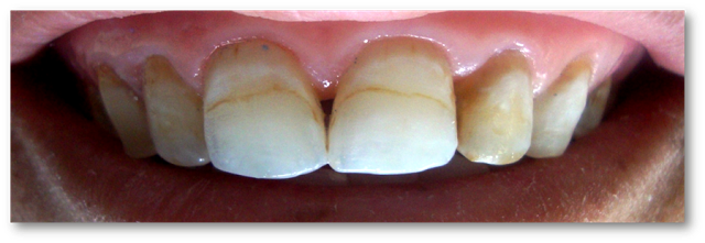 Using Microabrasion And In Office Bleaching To Treat