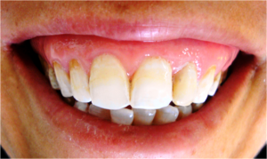 Using Microabrasion and In-office Bleaching to Treat Fluorosis in Permanent Anterior Teeth