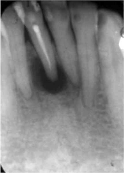 The article discusses the need for proper treatment planning, review and the need to opt for other endodontic procedures after primary endodontic therapy.