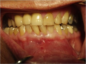 The article discusses the need for proper treatment planning, review and the need to opt for other endodontic procedures after primary endodontic therapy