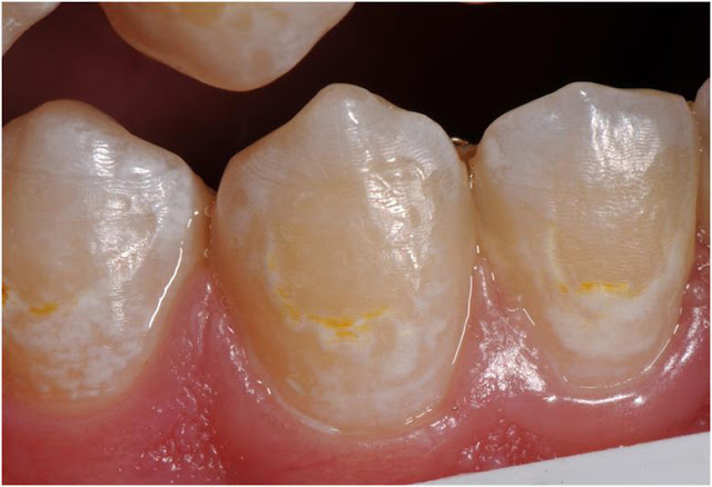 "Treatment of ""White Spot Lesions"" after Removal of Fixed Orthodontic Appliances"
