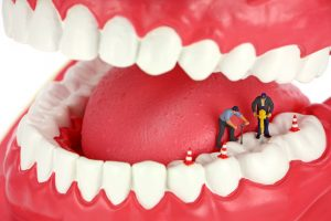 Endodontic management of a maxillary lateral incisor