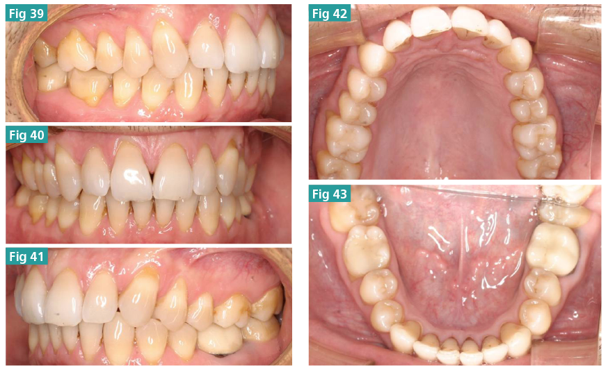 Updating the CA Clear Aligner Therapy