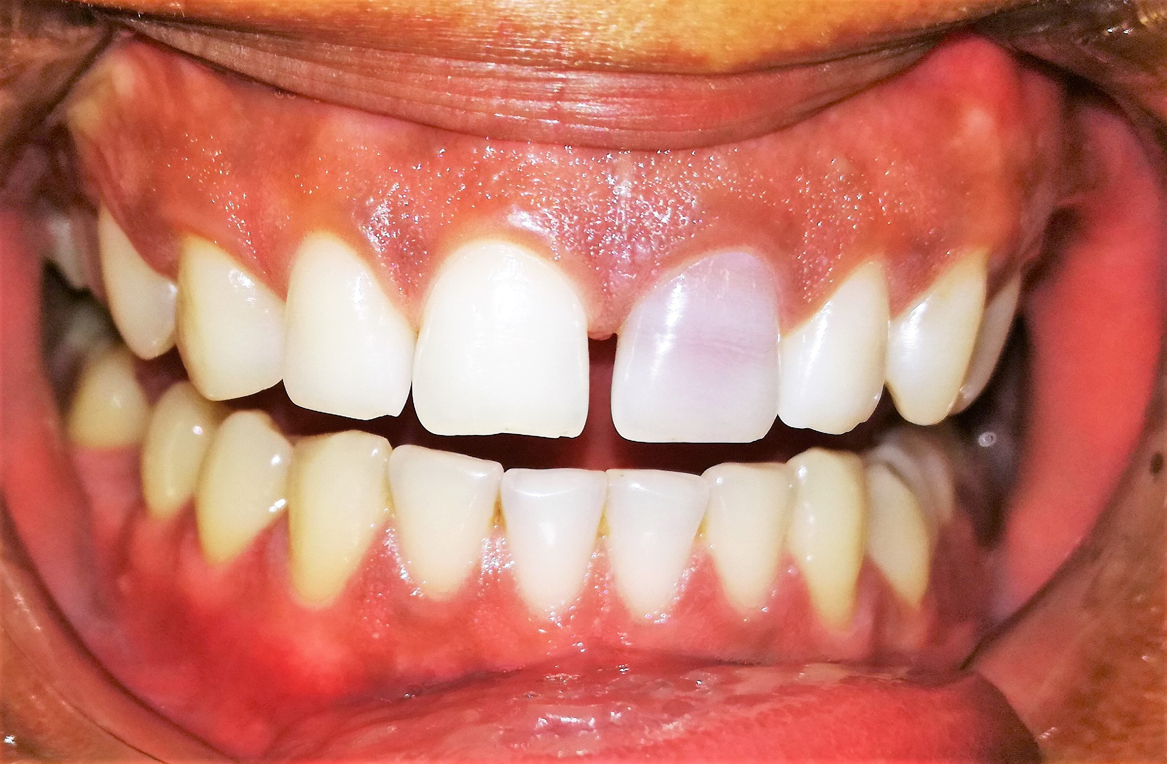 Bleaching Of Non Vital Discolored Teeth Keys Of Success Dental News