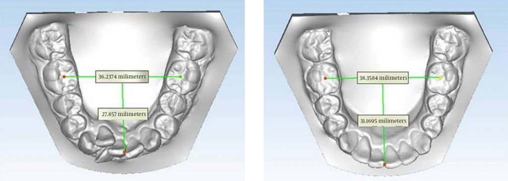 mandibular