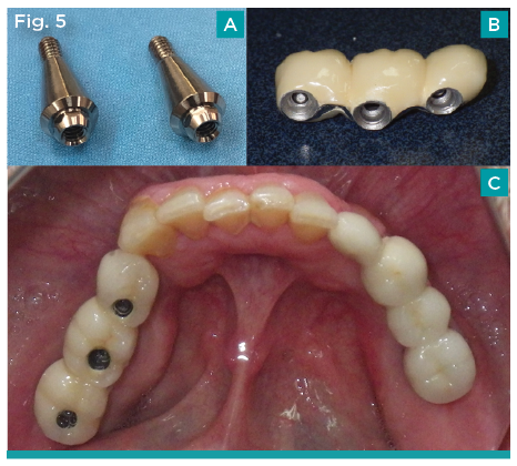 abutments prosthetics by tony daher