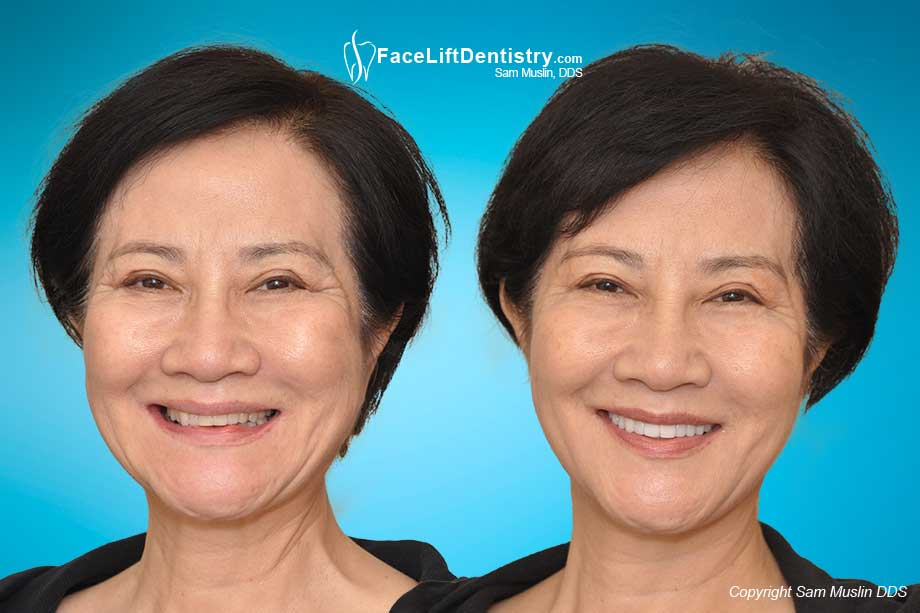 Jaw dental face fix method misaligned teeth