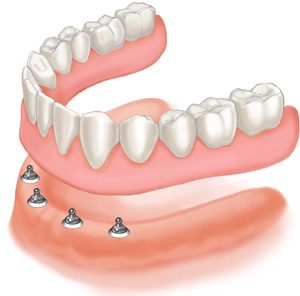 The Use of Mini-Implants in Complete Denture Treatment
