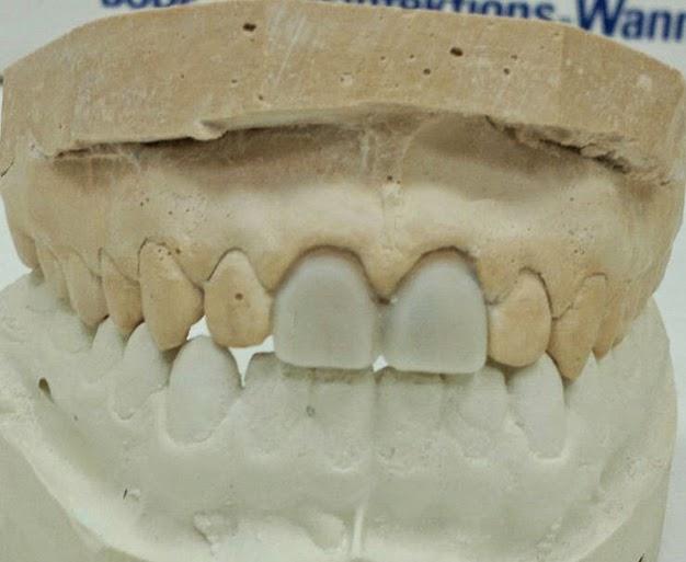 Ceramic Premolar Crown Porcelain Veneers