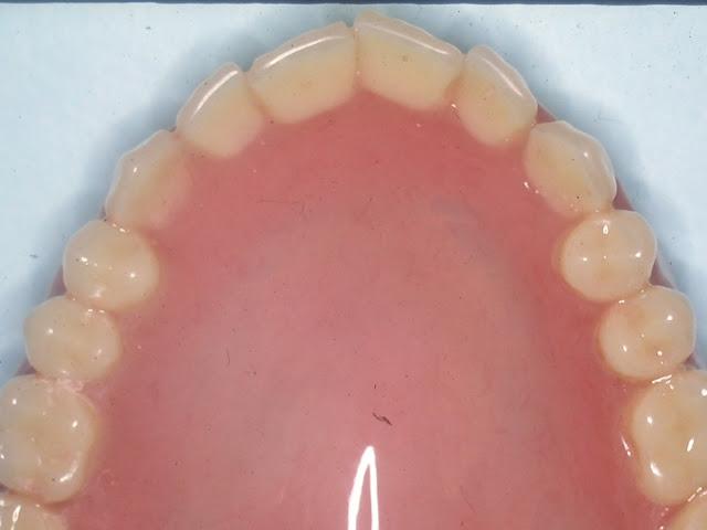 Customizing Esthetic Complete Dentures, Natural look denture