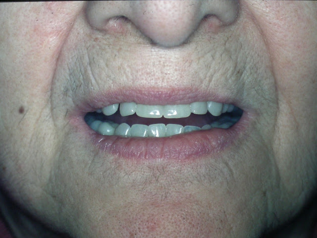 Customizing Esthetic Complete Dentures, Natural look denture appearance