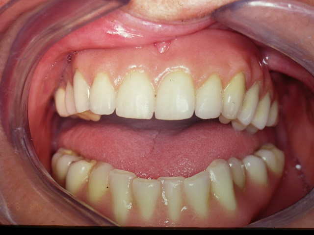 denture appearance