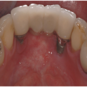 Distraction Osteogenesis for Augmentation of Anterior Mandibular Segment after Failed Implants Removal