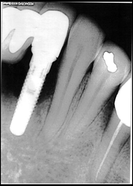 Distraction Osteogenesis for Augmentation of Anterior Mandibular Segment after Failed Implants Removal