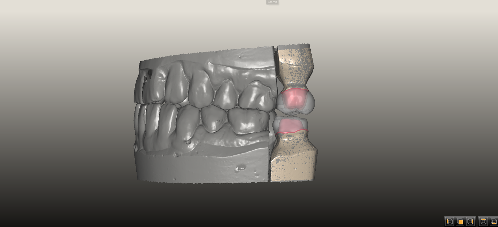 In spite of high zirconia mechanical strength, chipping and fracture of layering porcelains applied to zirconia frameworks continue to be a problem.