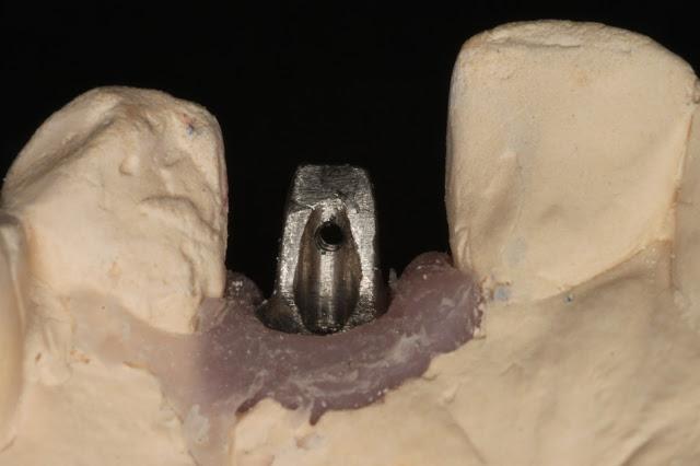 Cement-free Implant Retention