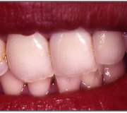 Tooth Bleaching