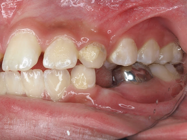 Management of Impacted Maxillary Central Incisor due to Supernumerary Teeth