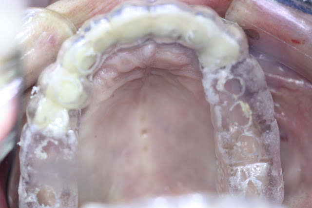 Maxillary Immediate Loading with Fixed Implant-Supported Restoration in an Edentulous Patient