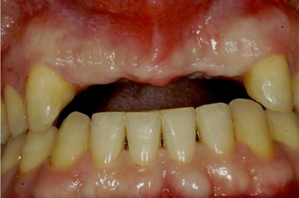 Preoperative maxillary ridge form with obvious horizontal ridge defect